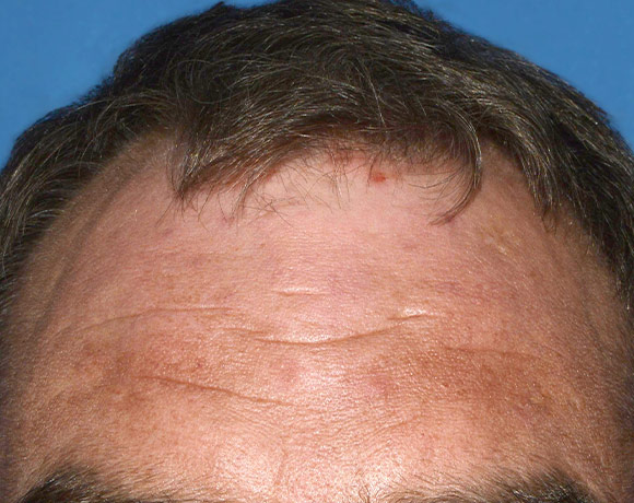 Picture of scalp affected with psoriasis before treatment