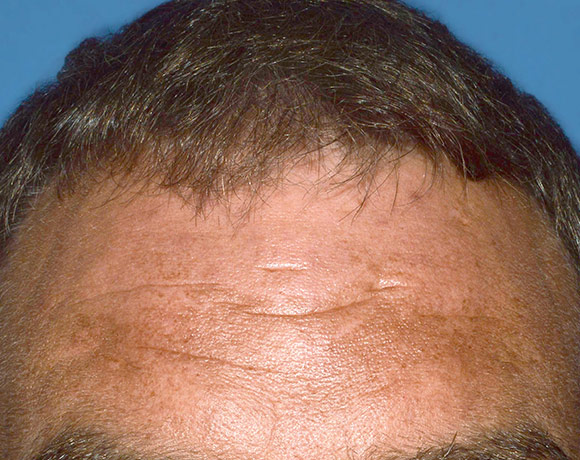 Picture of the scalp affected with psoriasis after 16 weeks with Otezla® treatment